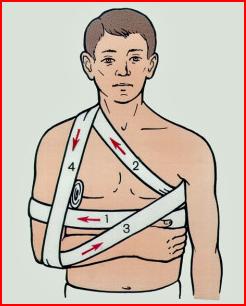 Первая помощь при вывихе плечевого сустава артрит челюсного сустава лечение